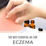 The Best Essential Oils for Eczema and Dry Skin